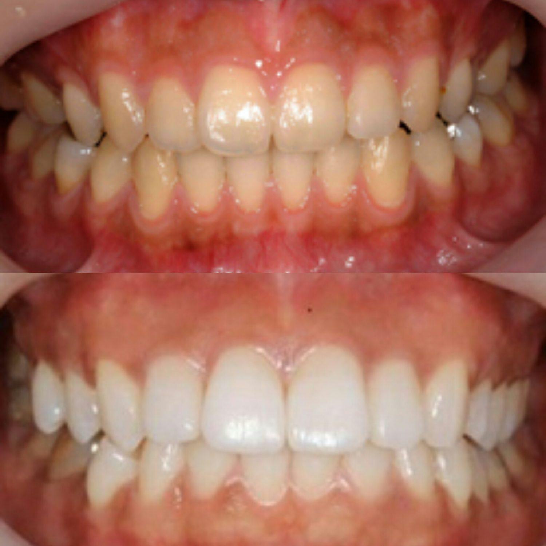 ホワイトニングで透き通るような白い歯を