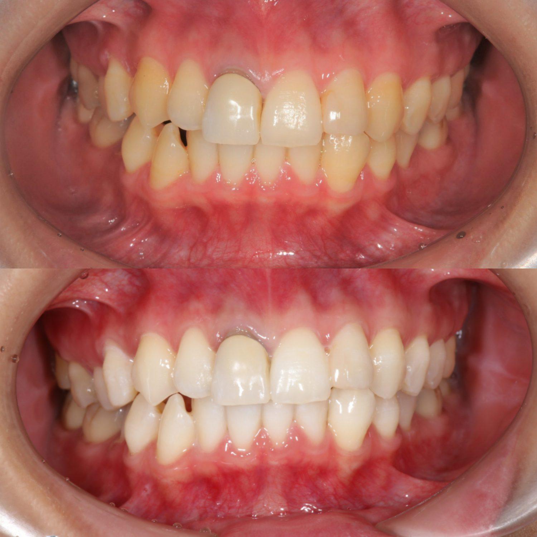 ホワイトニングで歯の黄ばみを治す