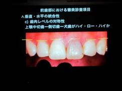 審美 カツベ歯科クリニック