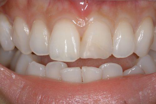 セラミック カツベ歯科クリニック
