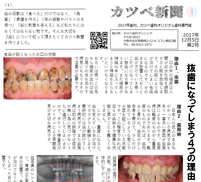 抜歯になってしまう4つの理由(カツベ新聞第2号)