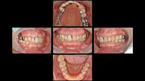 インプラント治療前 カツベ歯科クリニック