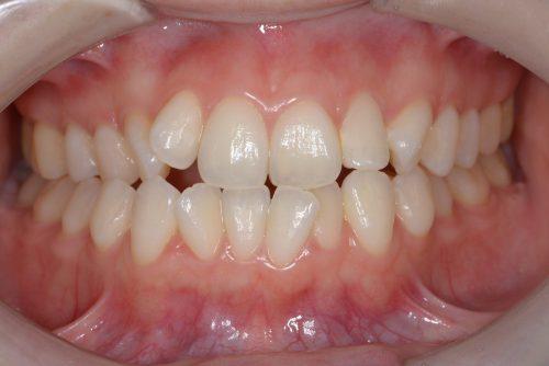 矯正前 カツベ歯科クリニック