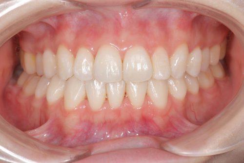 矯正後 カツベ歯科クリニック