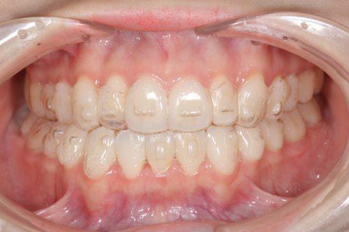 大阪・梅田の歯医者 カツベ歯科クリニック 矯正後インビザライン装着 カツベ歯科クリニック