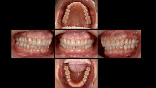 インプラント治療後 カツベ歯科クリニック