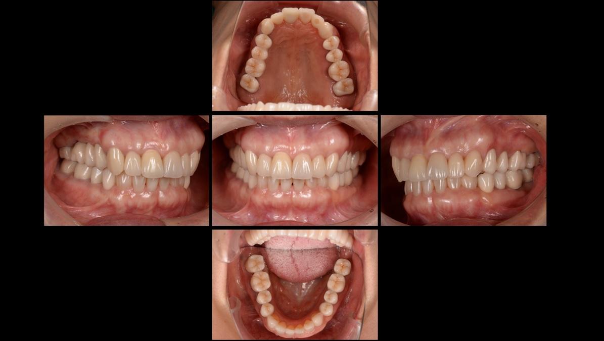 インプラントと差し歯のメリット・デメリット