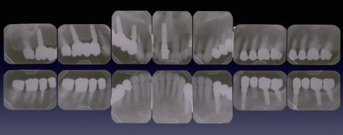 インプラント治療 カツベ歯科クリニック