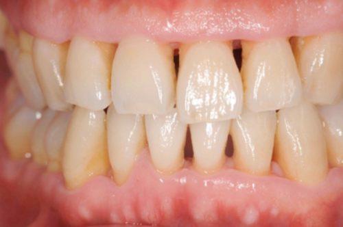 歯周病 カツベ歯科
