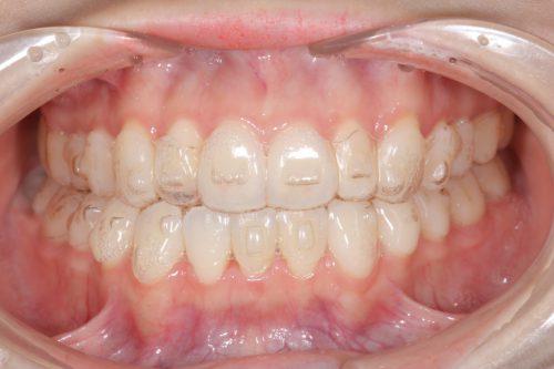 インビザライン カツベ歯科クリニック