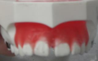 矯正 カツベ歯科クリニック