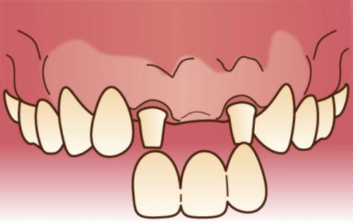 インプラントブリッジ カツベ歯科クリニック