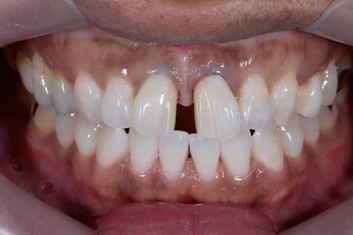 ラミネートベニア術前 カツベ歯科クリニック