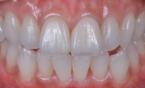 セラミック治療術後 カツベ歯科クリニック
