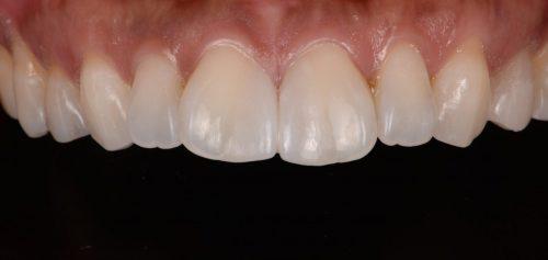 ラミネートベニア術後 カツベ歯科クリニック