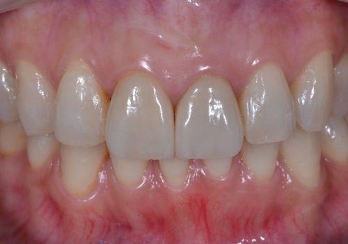 審美歯科 カツベ歯科クリニック