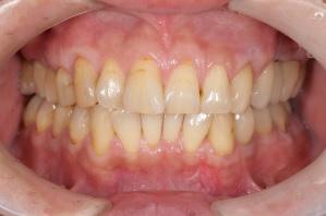 根面被覆術 カツベ歯科クリニック