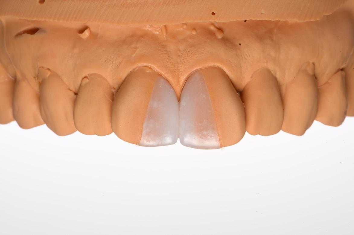 すきっ歯(正中離開)は綺麗に治すことができます