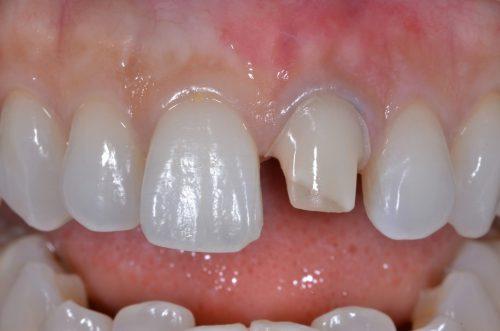セラミック治療術前 カツベ歯科クリニック