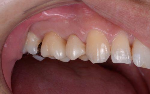 セラミックの審美治療 カツベ歯科クリニック