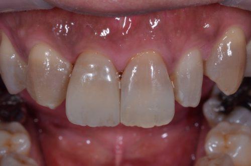 インプラント カツベ歯科クリニック