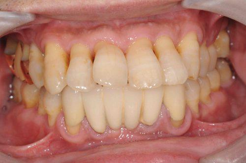 術前 カツベ歯科クリニック