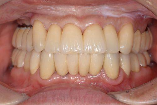 術後 カツベ歯科クリニック