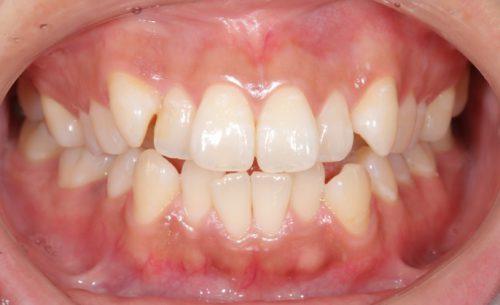大阪・梅田の歯医者 カツベ歯科クリニック 矯正治療症例