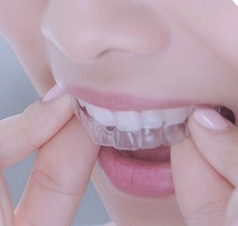 大阪・梅田の歯医者 カツベ歯科クリニック マウスピース矯正