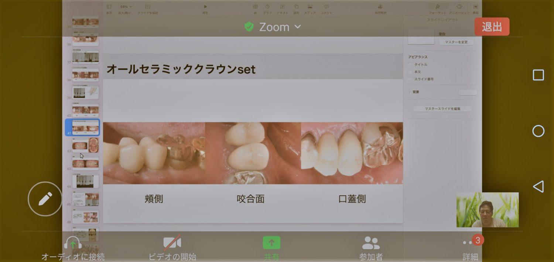 歯科の勉強会(NHK-B)を開催しました