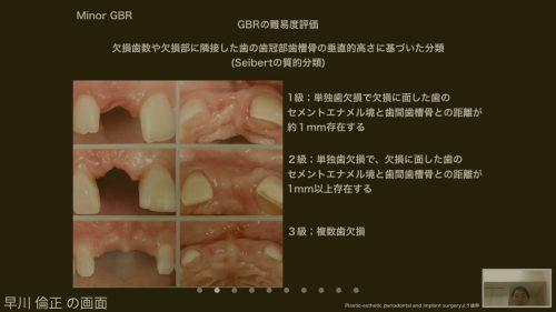 歯科の勉強会