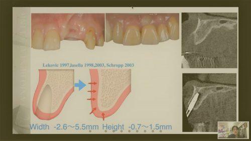 歯科勉強会