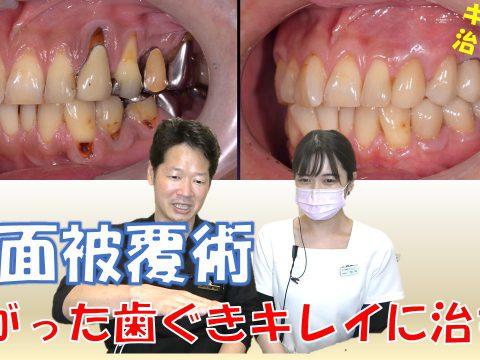 下がった歯ぐきを治す根面被覆術