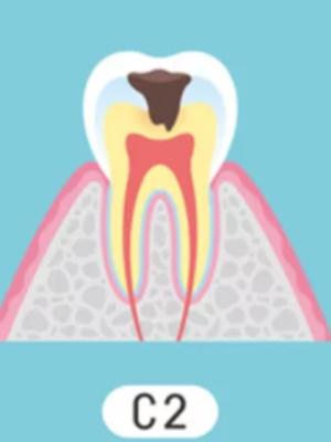 C2 象牙質のむし歯