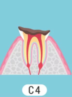 C4 歯の根まで達したむし歯
